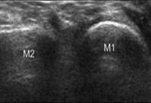 Figure 2. Coronal scan at level of metatarsals dorsally.