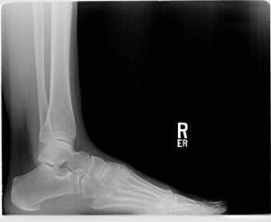 Figure 1. Lateral X-ray view of the right calcaneus with no posterior spurring noted.
